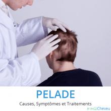 Pelade causes symptômes et traitements
