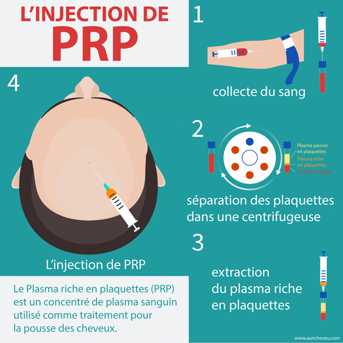 L'Injection de PRP (Plasma Riche en Plaquettes)